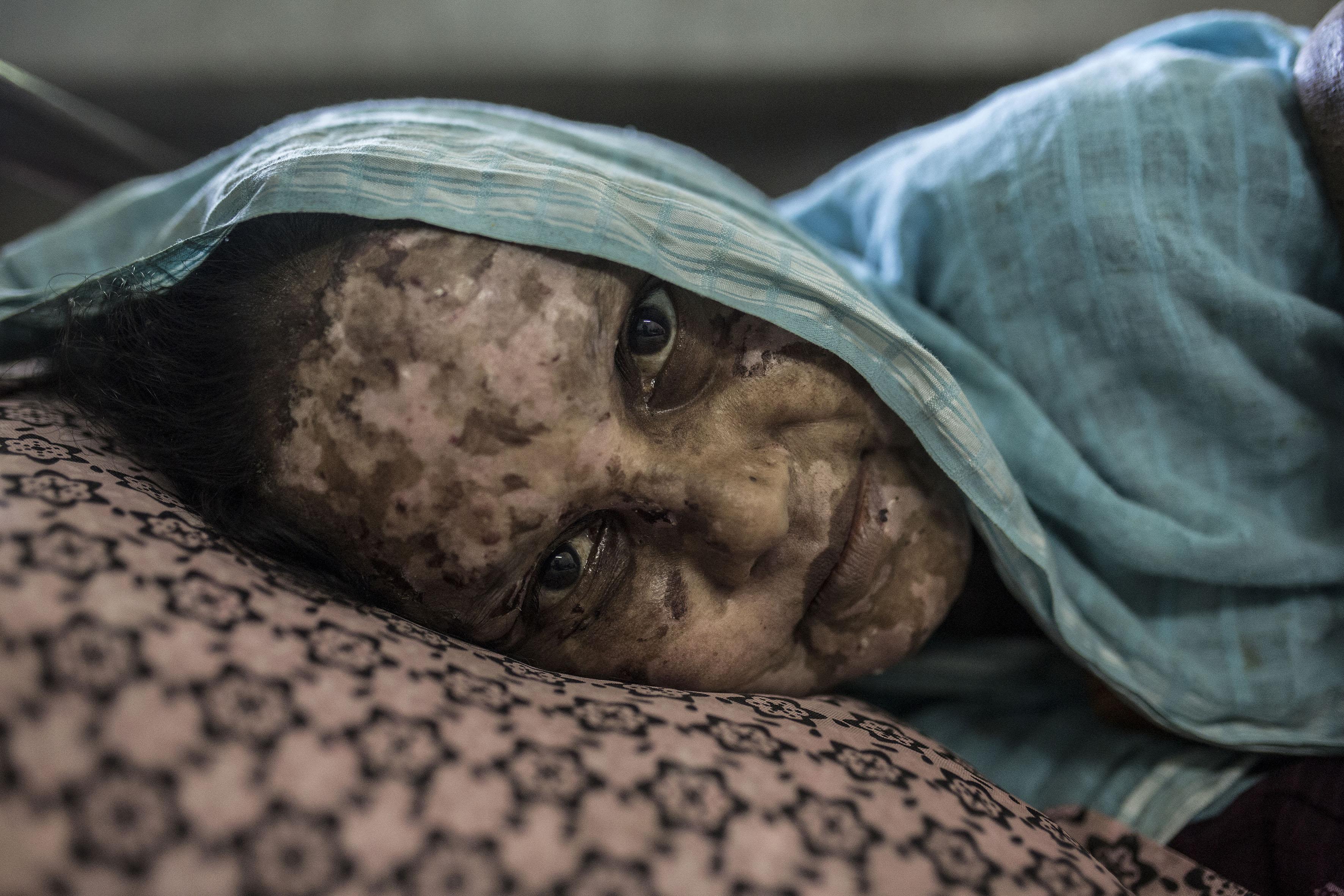 Shaheda tiene 40 años y el cuerpo quemado porque, según denuncia, el ejército de Myanmar prendió fuego a su aldea para expulsar a todos los rohingyas. Se recupera de sus heridas en un hospital de Cox´s Bazar , en Bangladesh. 24/09/2017.